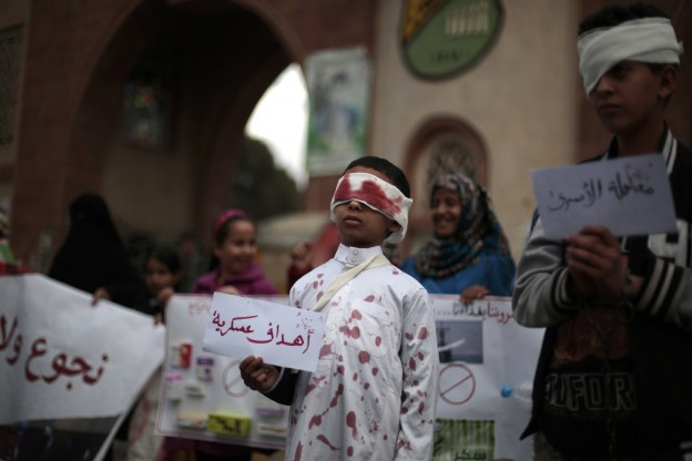 "A boy, center, with fake blood on his face and clothes to represent a victim as he holds a poster with Arabic writing that reads,""Military targets"" during a protest against Saudi-led airstrikes in Sanaa, Yemen, Sunday, Nov. 27, 2016. (AP Photo/Hani Mohammed)"